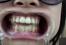 A certain shows her gums and sputs saliva